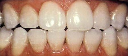 bọc răng nhựa