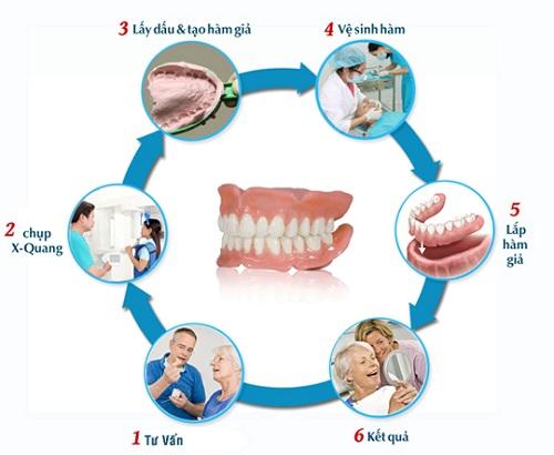 quy trình làm răng giả, hàm giả tháo lắp