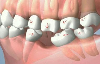 cay-ghep-rang-implant(1)