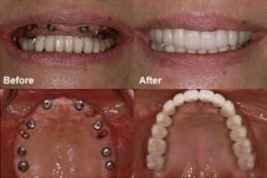 implant-nang-do-cau-rang-khi-mat-rang-toan-ham-01-300x200