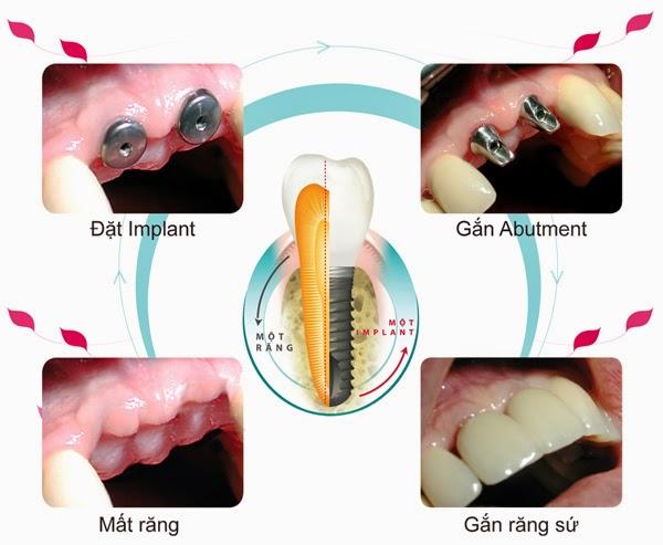 làm-răng-Implant-ở-đâu-tốt