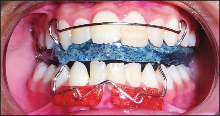 khí cụ điều trị tật đẩy lưỡi