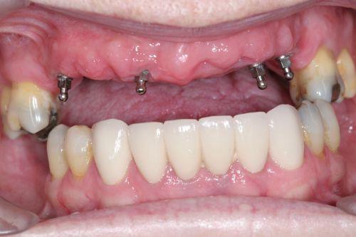 quy-trinh-cay-ghep-mini-implant-2