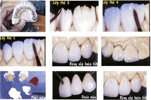 quy trình làm răng sứ - nha khoa Quốc Tế Âu Mỹ