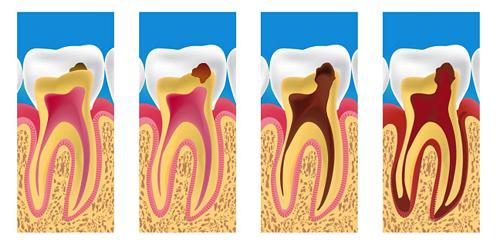 sâu răng tiến triển