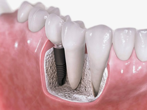tham-my-nuou-trong-implant-1