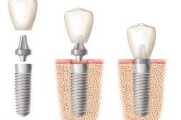 Lo-lắng-về-việc-cấy-implant-có-đau-không-3