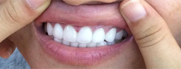 thẩm mỹ răng sứ Nacera - nhakhoaquocteaumy.com