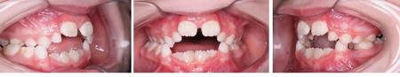 khớp cắn hở vùng răng cửa